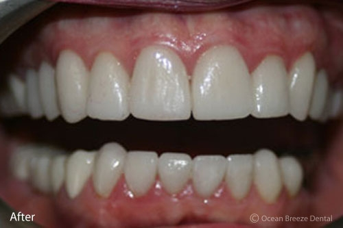 closeup image of straight, white teeth