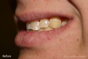 closeup profile photo of patient before treatment, crooked and yellow teeth