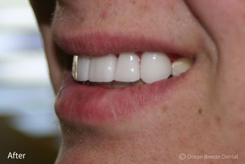 closeup profile photo of patient's white, straight teeth after treatment