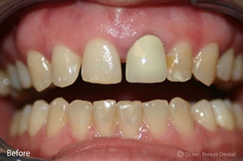 closeup photo of patient with crooked, yellow teeth before treatment