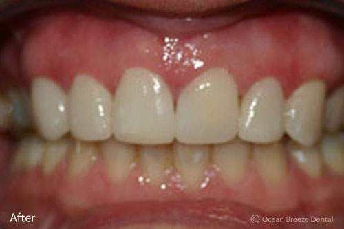 closeup photo patient's straight, white teeth after treatment
