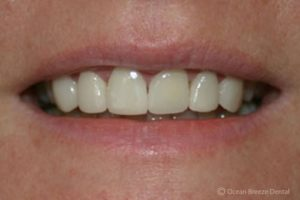 closeup photo of female patient's straight, white teeth after treatment