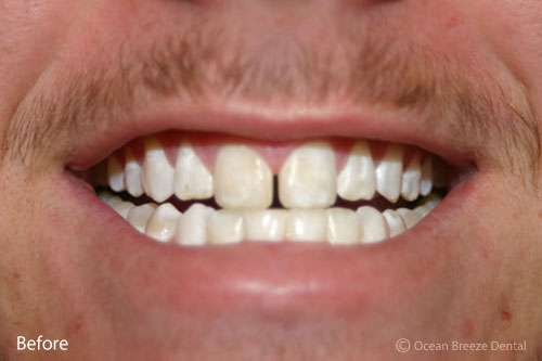 closeup of patient's teeth after whitening treatment