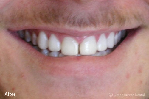 closeup of young male patient's smile after treatment