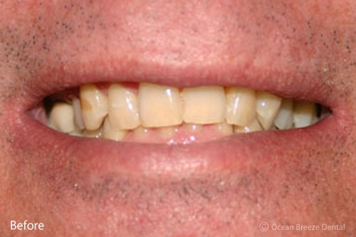 closeup of male patient, crowded and stained teeth before treatment