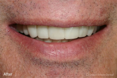 closeup of straight, white teeth after treatment on male patient