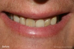 closeup of patient's crowded and yellow teeth before treatment