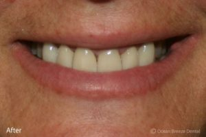 closeup of patient's straight teeth after treatment