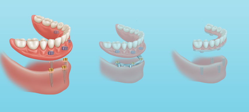 Removable implant dentures on Zest locators utilizing 2-6 dental implants