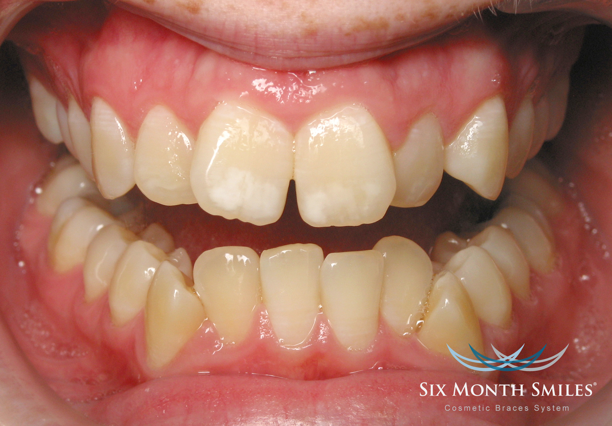 photo of patient teeth before Six Month Smiles