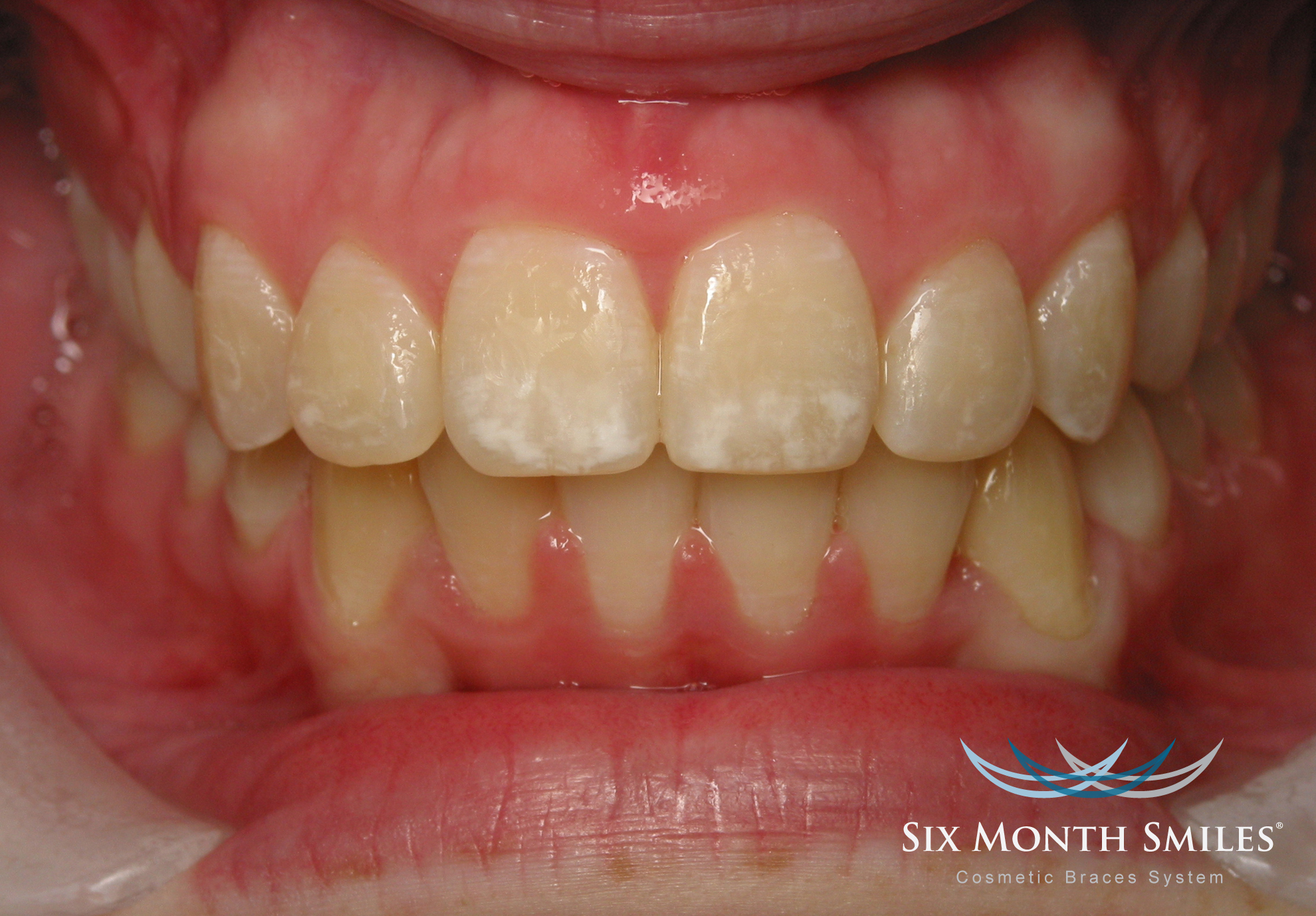 photo of patient teeth after Six Month Smiles