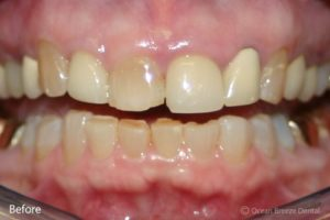closeup photo of crowded, uneven teeth before treatment