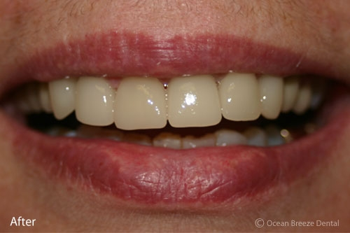closeup of female patient's smile after procedure