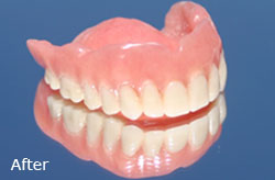 Denture Repair - After