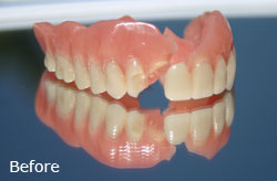 Denture Repair- Before