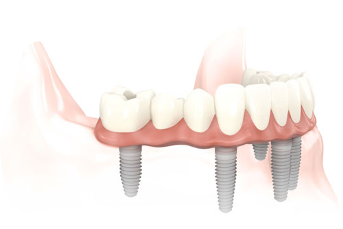 Full arch screw retained Prettau Implant Bridge