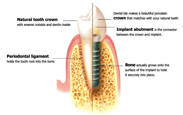 cross section diagram of tooth implant