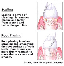 diagram explaining Scaling and Root Planing of Gums