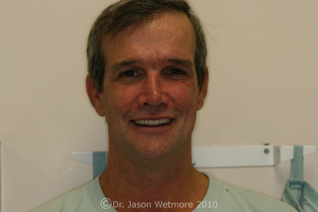 photo of mail patient with dentures