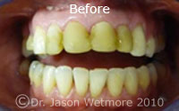 photo of patient teeth Before Crowns
