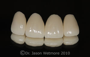 photo of porcelain crowns