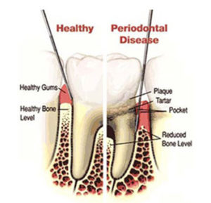 diagram showing Healthy gum vs. Periodontal Disease