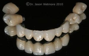 photo of 6 unit bridge, implant retained crown, 3 PFM crowns